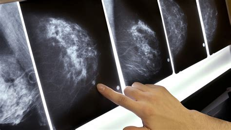 False Alarm Mammograms May Still Signal Higher Breast