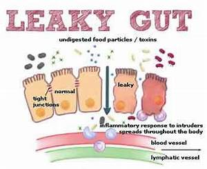 Leaky gut syndrome making life miserable ? Homeopathic ...