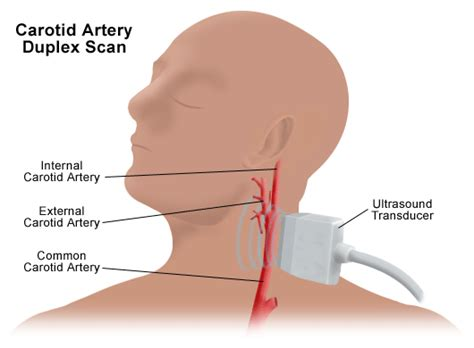The right and left subclavian arteries give. Ultrasound of the neck - how to make diagnosis ...