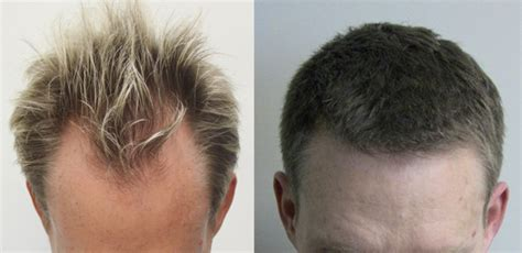 Cytotec Induction Rogaine Receding Hairline Before And After Www Pixshark Com Images Galleries With A Bite