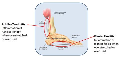 Extensor tendon diagram rowers without lbp healthy have distinct kinematics neutral or anterior. Athletic Foot Problems| Sports Podiatry | Orthotic Shop ...