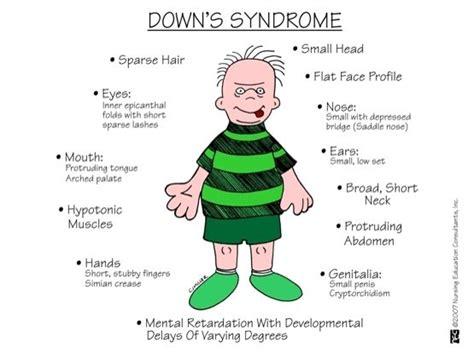 Terapi Down Syndrome  Jual Pati Garut Dan Gula Semut Bekasi. Clinical Depression Signs. Gaba Signs. Inflammable Signs Of Stroke. Comic Signs. Wood Carving Signs. Card Signs. Fever Blister Signs. Teething Signs