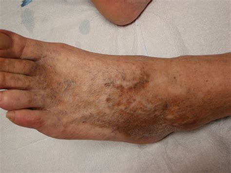 sclerotherapy foot sunburn spots staining stains vein phlebectomy numb ambulatory stained severe sunburned sclero mexico minor