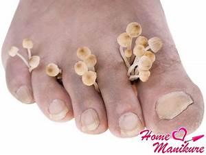 Меры предосторожности от грибка ногтей