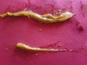 57 Mucus Covered Stools  Re  Are Thes Parasites  Worms