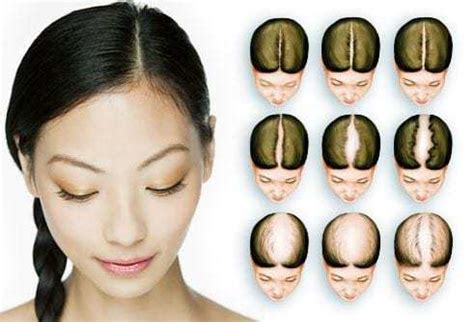 types  hair loss patterns  females  reversible