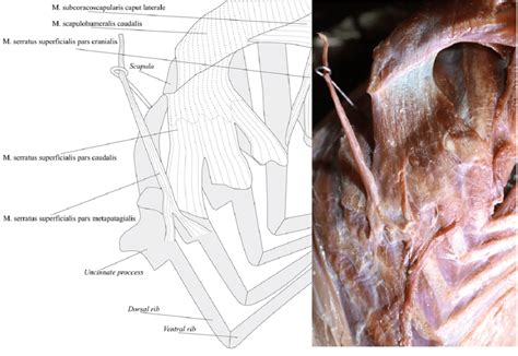 Diagram muscle shoulder joint (page 1) 2. Lateral view of the deep muscles of the right shoulder girdle of the...   Download Scientific ...