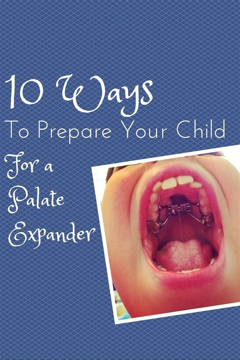 Consider having smoothies, scrambled eggs, moist cakes. 10 Ways to Prepare Your Child for a Palate Expander ...