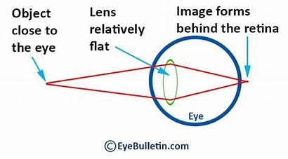 Lens Accommodation Glasses Reading Eye Animation Presbyopia