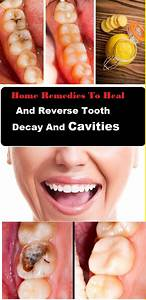 17 Best ideas about Cavities on Pinterest | Healthy teeth ...