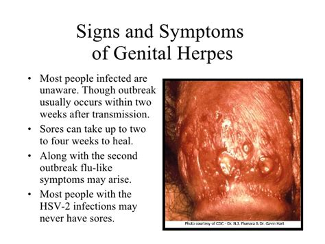 Herpes Viral Shedding After Outbreak by How Often Do Herpes Outbreaks Occur Herpes