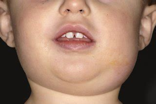 What Do Mumps Look Like in Children