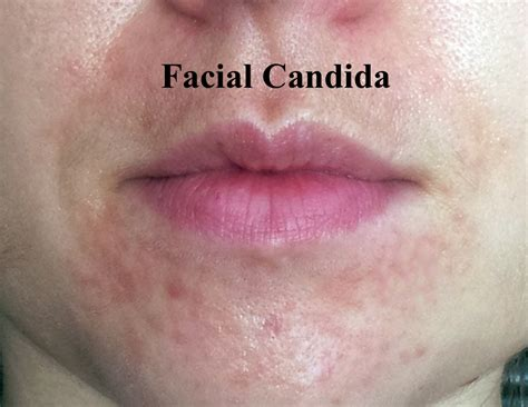 Candida Fungus Infection Skin Fungal Infection Treatment