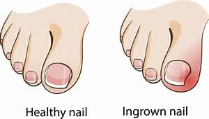 What Is An Ingrown Toenail  Including The Top Treatments And Prevention Methods