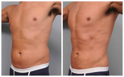 Liposuction For Men Top Docs Answer Frequently Asked. Fulton Teacher Credit Union Qsa Global Inc. Retail Management Online Dish Tv Knoxville Tn. What Is A Data Analysis Knoxville Tn Plumbers. Free Checking Accounts Dentists In Fresno Ca. Lowest Loan Interest Rates Personal Loan. F150 Ford Trucks For Sale Used. Data Center Virtualization Sex Offense Lawyer. Auto Car Insurance Quote It Temp Agencies Nyc
