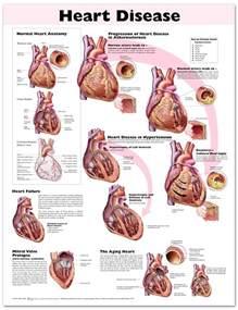 Heart Disease Chart