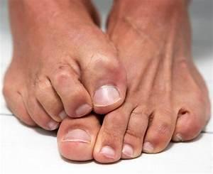 Шелушения кожи на ногах грибок
