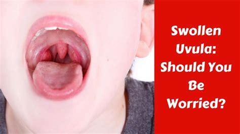 uvula images usseekcom