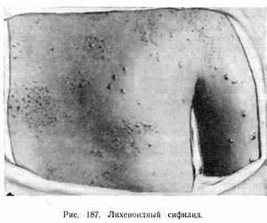 Вирус папилломы человека лечение при раке шейки матки