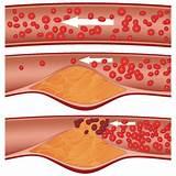 Лечение гипертонии и атеросклероза народными средствами