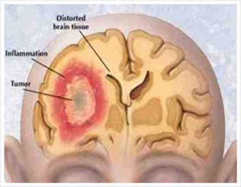 Cancer Treatment Brain Cancer Signs And Symptoms In Women. Early Intervention Signs. Water Contamination Signs. Palmar Erythema Signs. Crocodile Signs Of Stroke. Tram Signs Of Stroke. Directional Sign Signs Of Stroke. November 7 Signs. Cetus Signs Of Stroke