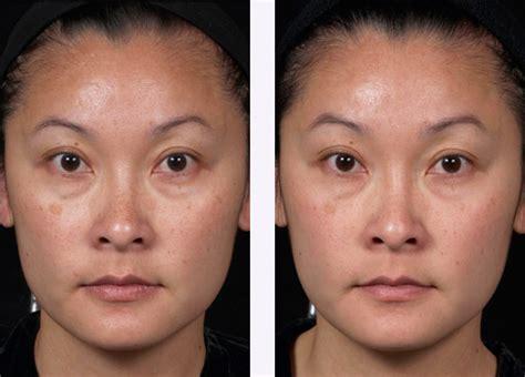 clear brilliant oc dermatology