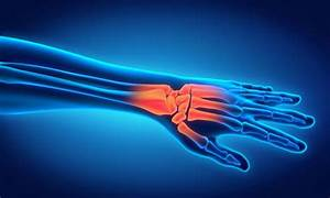 What Does Wrist Pain Mean