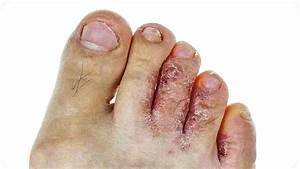Грибок кожи ног с лечение