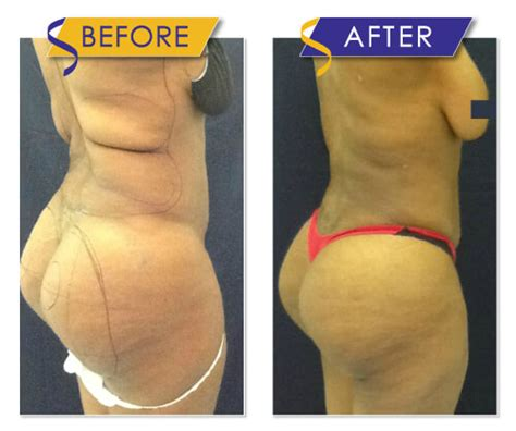 Liposuction Gallery  Before & After  Dr Monte Slater. Environmental Testing Chambers. Premier America Credit Card Camry Vs Altima. Automotive Crm Companies Veeam Offsite Backup. Fire Alarm Monitoring Software. National Beauty College Canton Ohio. Credit Cards For Traveling How Crystals Form. Prepaid Gas Cards Discount Vonage 1800 Number. When Filing Bankruptcy What Can You Keep