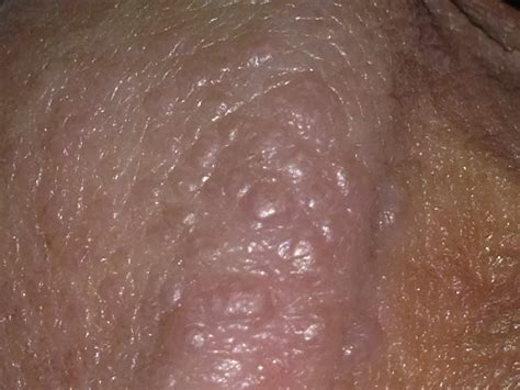 Small Blister On Penis Granny Picture Porn
