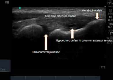 Long axis view of the common extensor tendon