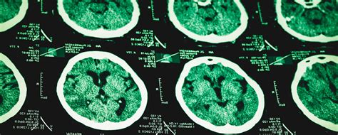 meth damage  brain