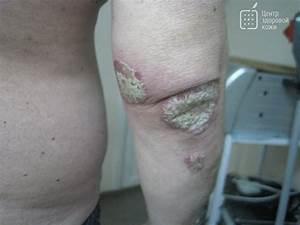 Клотримазол для лечения псориаза