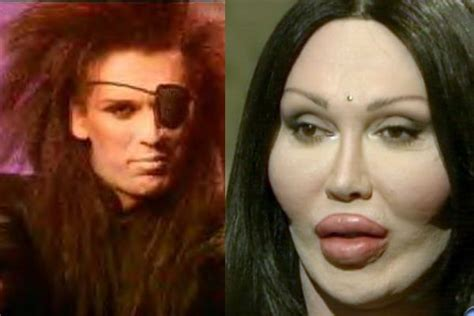 Pin on Plastic Surgery The Good Bad & Ulgy