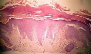 Lichen Simplex Chronicus (Neurodermatitis; Prurigo)