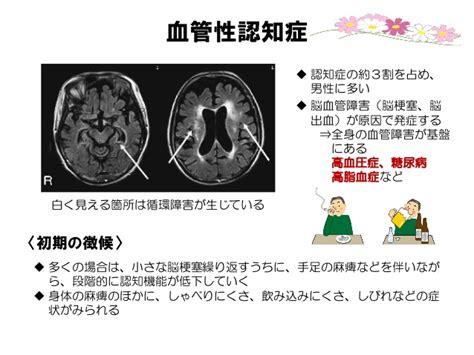 血管 性 認知 症
