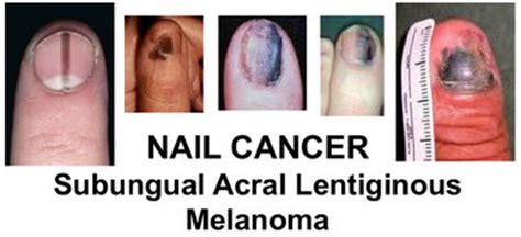 nail cancer gallery