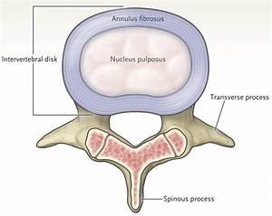 Herniated Lumbar Intervertebral Disk - Now@NEJM Now@NEJM