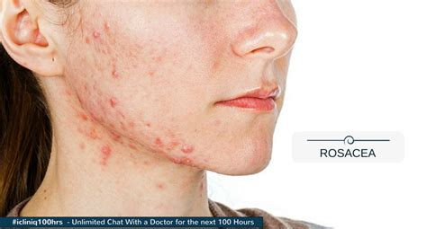 Rosacea Images Which Is The Best Peel For Rosacea