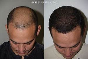 15 Best Hair Transplant Clinics And Doctors In Lahore