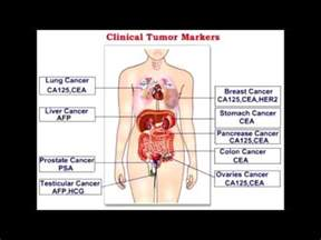 tumor marker ca 125 definition and purpose of tumor