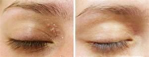 Mole / Skin Tag / Wart / Milia Removal : CO2 Laser Treatment