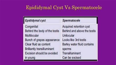 Scrotal Swellings 3- Epididymal Cyst