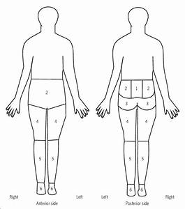 Figure  Body Pain Diagram