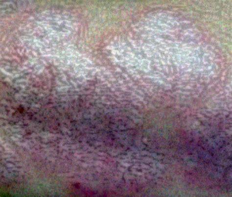 Quel traitement pour psoriasis cuir chevelu