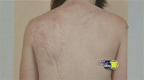 Healing Burn Scars