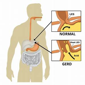 Whats The Difference Between Gerd And Acid Reflux