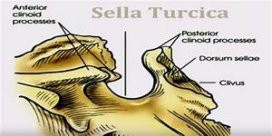 Sella Turcica - Assignment Point