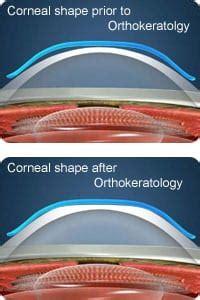 contact lenses corrects myopia shortsightness
