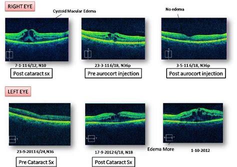 drushtieye  retina center cataract surgery
